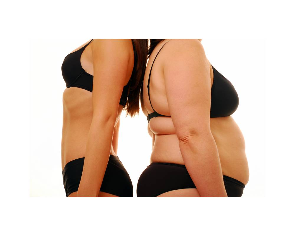 Obesidade e Cirurgia Bariátrica